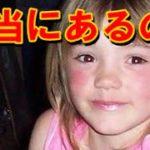 ハイランダー症候群は実在or嘘?sammyはかわいいが日本人の事例は?